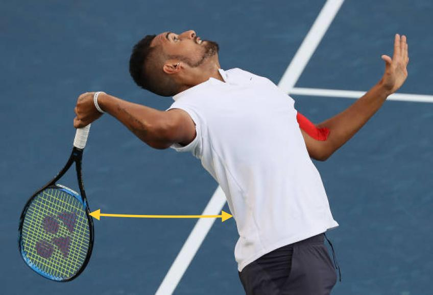 Nick Kyrgios serve